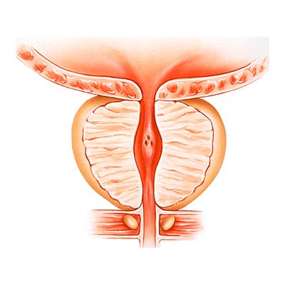 Unidad de próstata